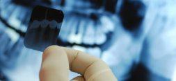 83064-dentista-alcala-henares-clinica-dental-radiologia-dental-radiografias-dientes-ortopantomografia-ortodoncias-teleradiografias-estetica-dental-cirugia-protesis-dentales
