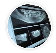 rayosx-dental3