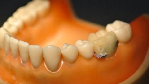 chip-dental
