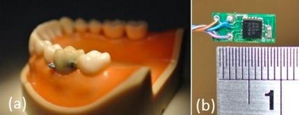 chip-dental2