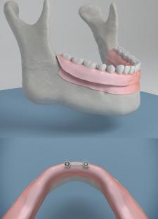 sobre-dentadura