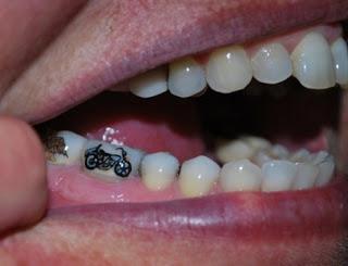 tooth-tattoo