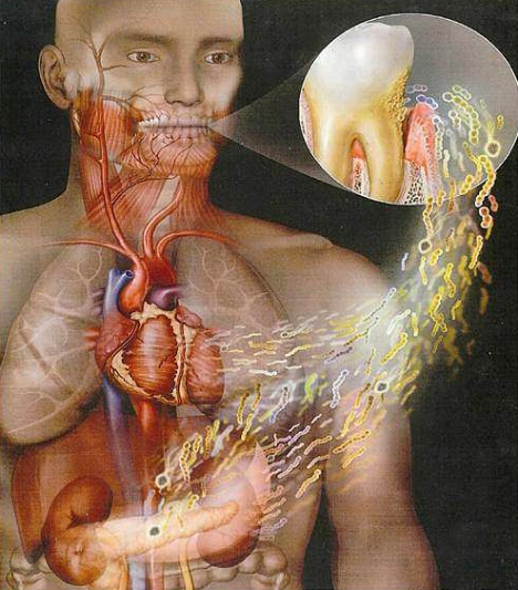 bacterias_bucales-corazon
