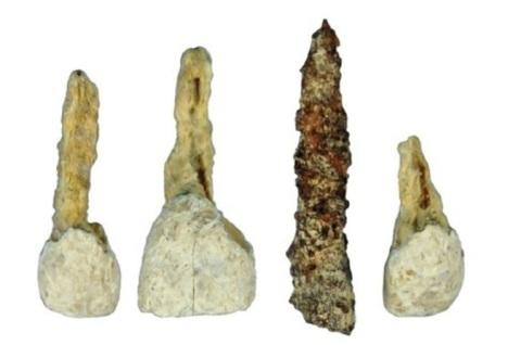 El implante dental (tercero por la izquierda) ocupaba el lugar de un inciso superior. ANTIQUITY