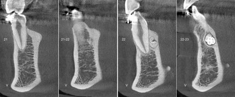 1-torus-mandibular-odontoma_CORTES-TRANSVERSALES