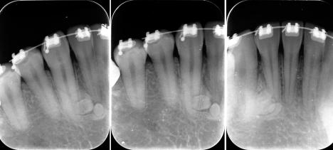 torus-mandibular-odontoma-PERIAPICALES