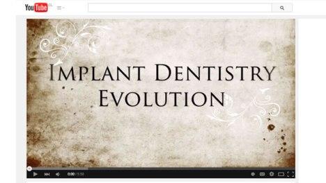 historia-de-la-implantologia