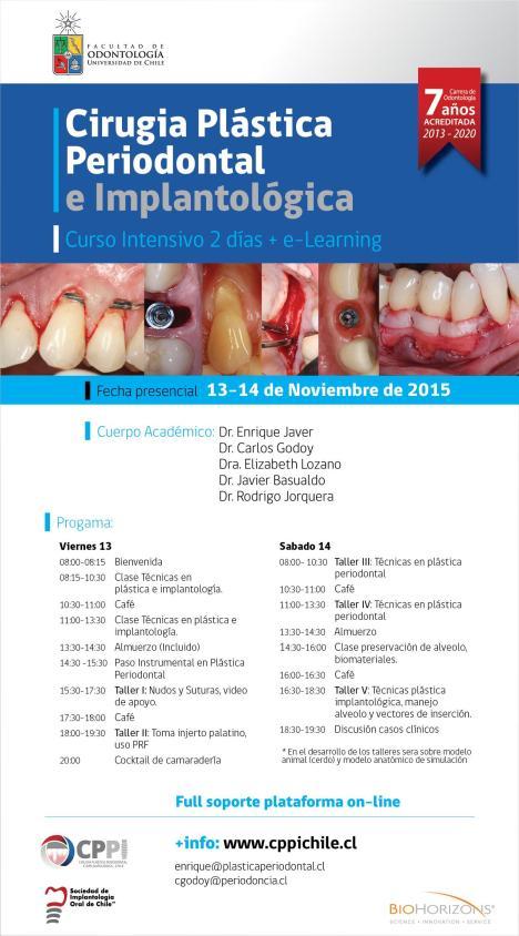 cirugia-plastica-periodontal-U-de-Chile