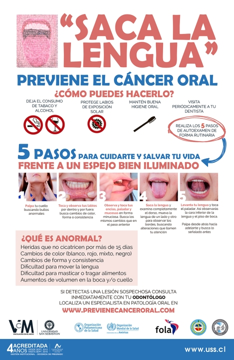 cancer_oral