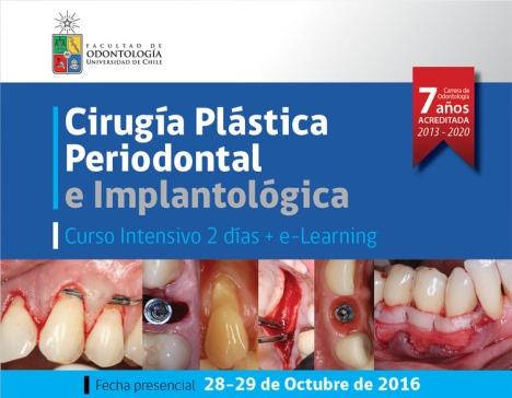 UdeChile_plastica-periodontal
